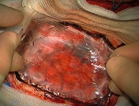 Dural closure with TissuePatchDural - close-up