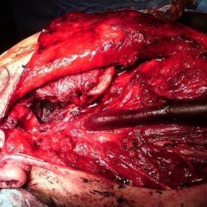 Neck Surgery